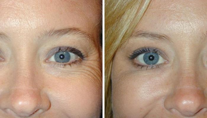 Результат применению ботулотоксина - разглажены мимические морщины у глаз