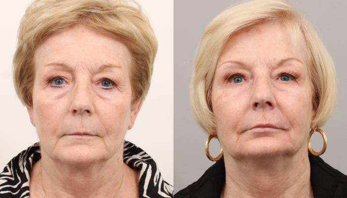 Улучшение тонуса лица и полное разглаживание мелких морщин