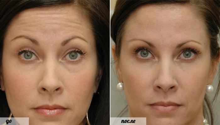 Эффект от введения ботокса в область вокруг глаз длится 4-8 месяцев