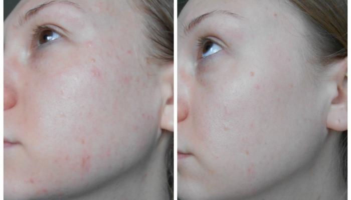 Фото до и после применения средства для лечения сыпи на лице
