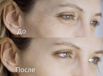 Многие женщины в восторге от эффекта применения ботокса в области глаз