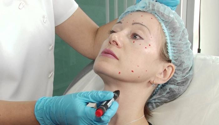Перед процедурой врач наносит маркером точки для точного введения препарата