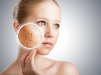 Побочным действием препарата может быть сухость или жжение кожи