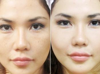 Результат применения наполнителя для увеличения губ