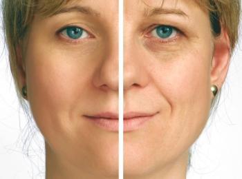 Со временем кожа теряет свою эластичность и растягивается, образуя морщины