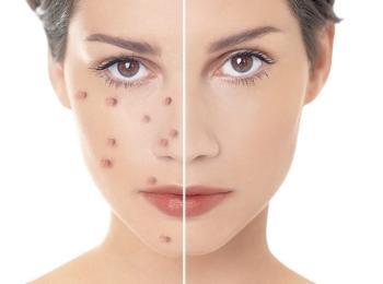Средство прозрачно и незаметно на коже после нанесения
