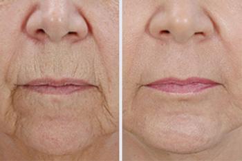 Инъекции Ботокса над верхней губой: до и после
