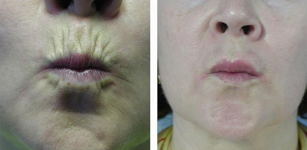До и после инъекций Ботокса вокруг губ и в уголки губ