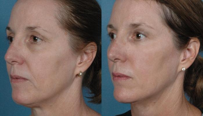 Эффект от применения радиочастот для подтяжки овала лица сильнее всего в возрасте 35-45 лет