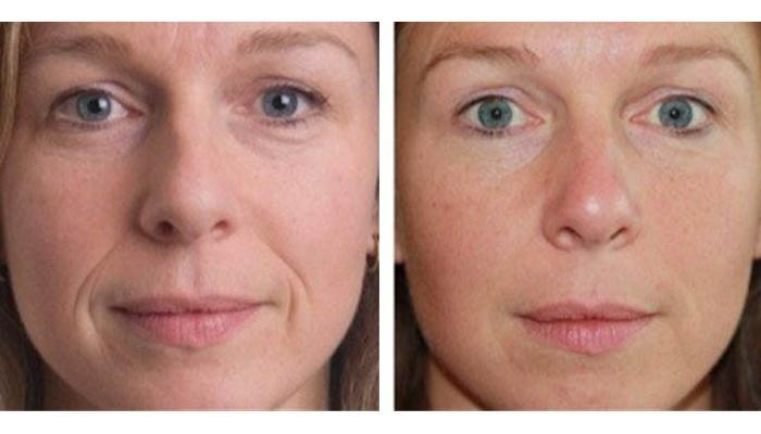 Эффект от применения уколов вокруг глаз и носогубных складок