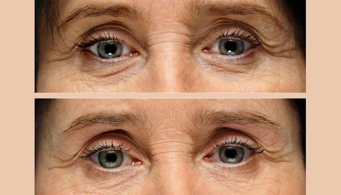 Фото до и после введения филлеров в глазную область