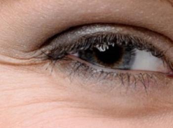 Морщинки вокруг глаз и дряблость кожи век - основныые показания к применению наполнителей