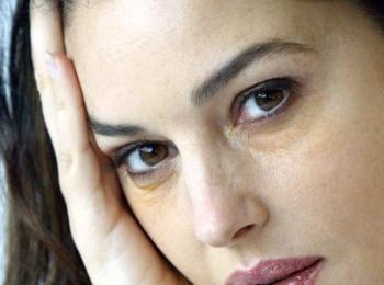Небольшие синяки вокруг глаз - один из быстро проходящих побочных эффектов процедуры