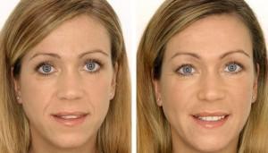 После инъекций значительно уменьшаются морщинки вокруг губ
