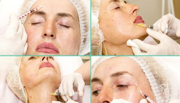 Процедура введения филлеров в разные части лица и шею