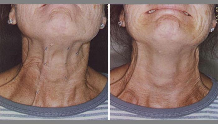Регулярное применение препарата не вызовет привыкания, если делать уколы в шеи не слишком часто