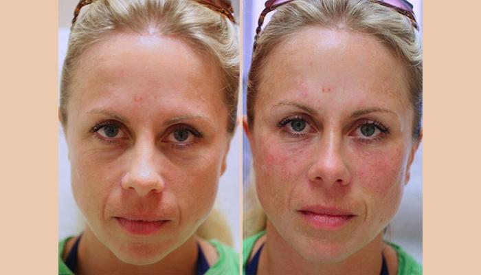 Результат коррекции кожи вокруг глаз и слезной борозды