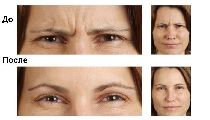 Результат от процедуры - существенное уменьшение морщин