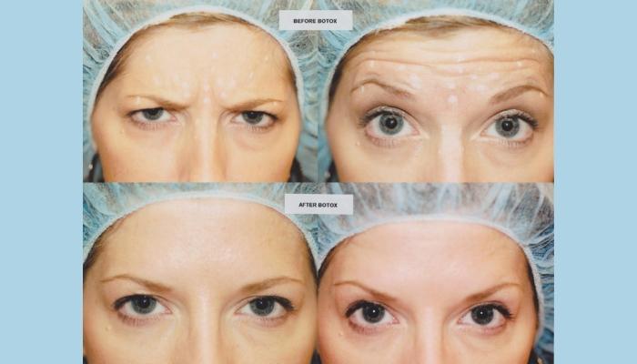 Результат применения Ксеомина в области глаз и межбровья