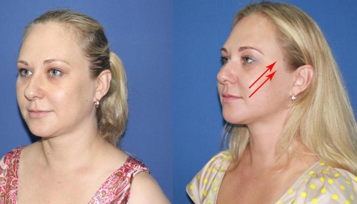 Результаты нитевой подтяжки лица могут сохраниться до трех лет