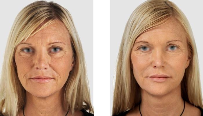 Результаты применения препаратов ботулотоксина А на лице