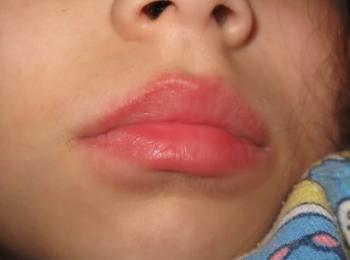 Среди побочных действий таких препаратов - покраснение кожи и жжение