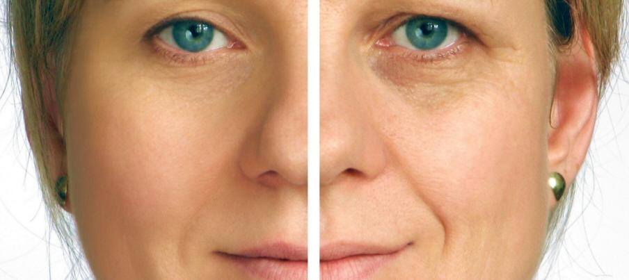лифтинг лица до и после