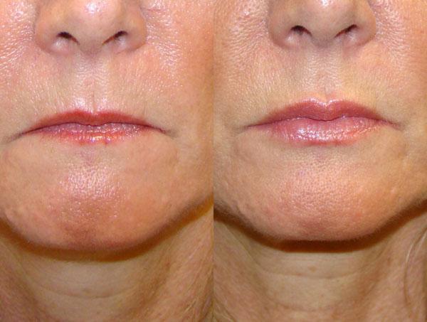 Удивительные результаты разглаживания морщин над верхней губой
