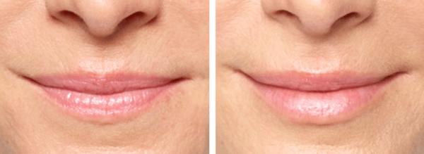 Резаультаты уколов вокруг губ