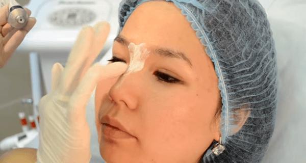 Анестезия перед процедурой контурная пластика