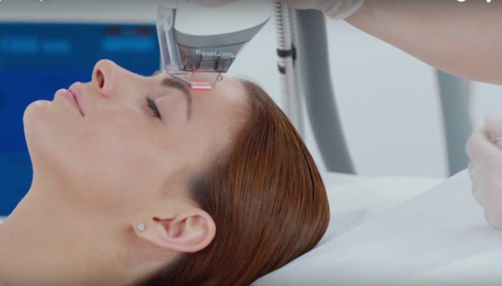 Лазерная процедура омоложения лица при помощи системы Фраксель