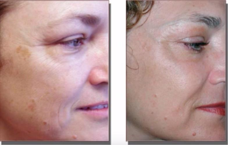 Сравнение лица До и После лазерной обработки методом Фраксель