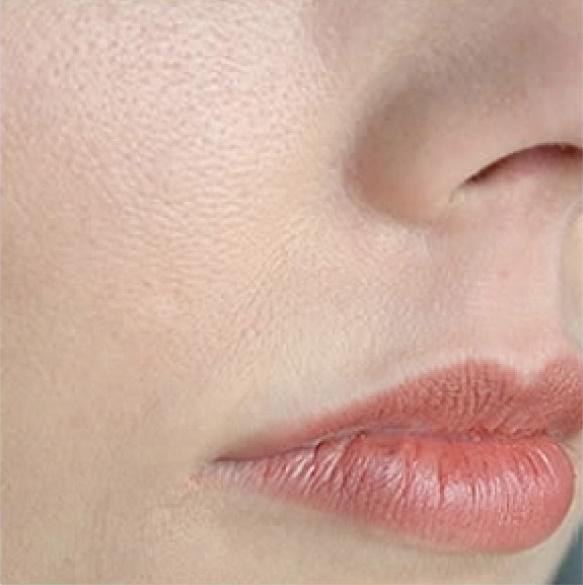Увеличенные поры на лице