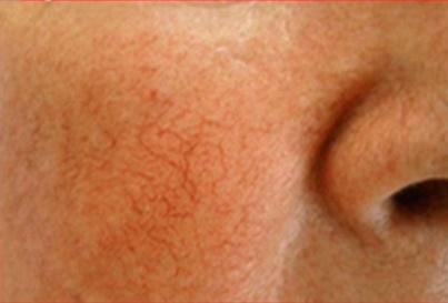 Купероз - одна из самых неэстетичных проблем кожи лица