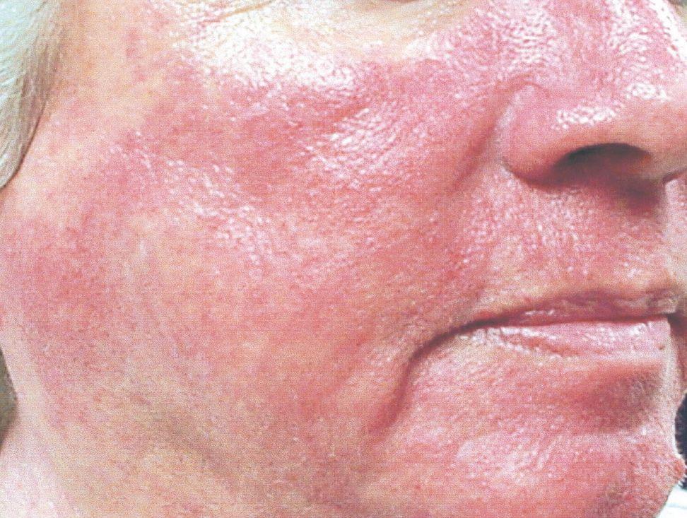 Розацеа на лице