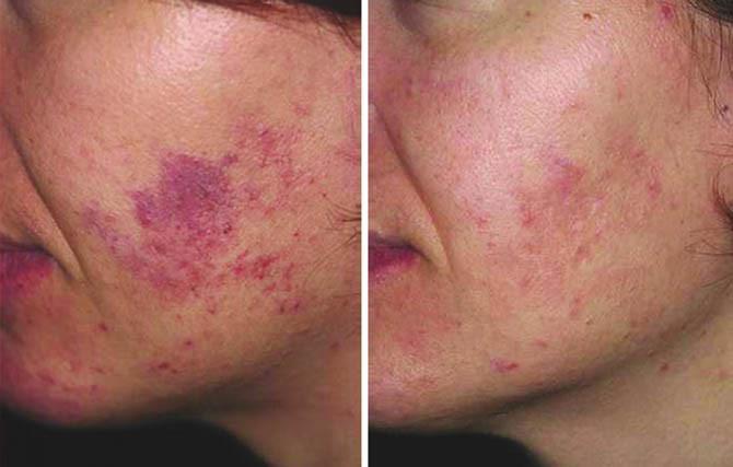 Розацеа до и после лечения