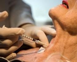 Процедура введения ботокса в мышцы шеи длится примерно 15 минут