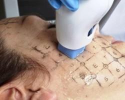Термаж - отличная альтернатива многим хирургическим операциям