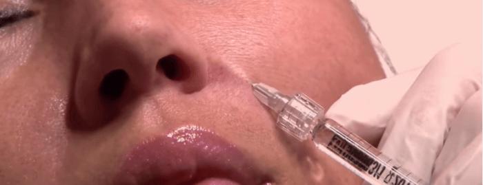 Введение филлера может вызвать осложнения: шишки и отёки