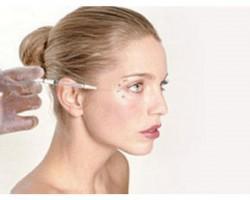 Инъекция препарата в зону вокруг глаз