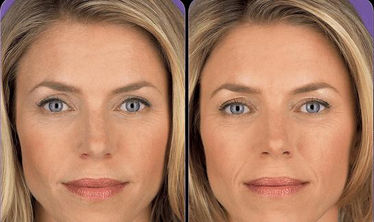 Surdzhiderm: до и после введения