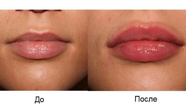 До и после коррекции губ сурджидерм