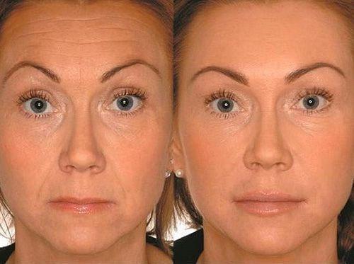 Результат введения филлера в нижнюю часть лица